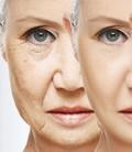 ضد چروک و ضد پیری