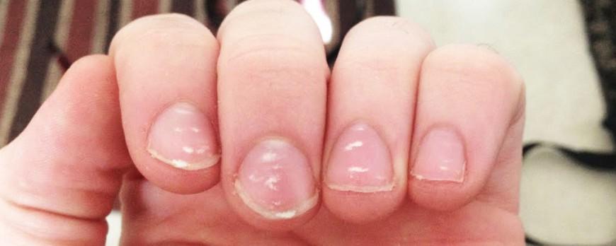 لکه های سفید روی ناخن ها چیست